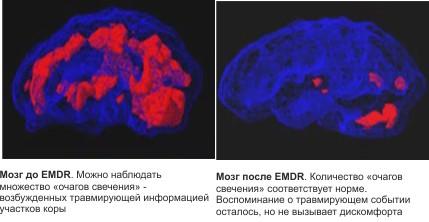 мозг дпдг